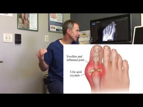 Gout - Symptoms, causes and other associated risk factors